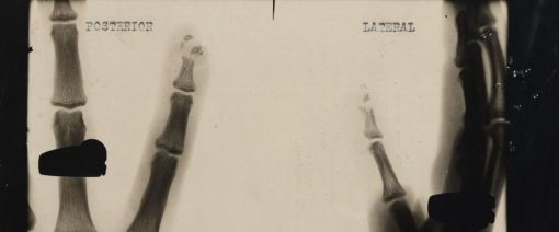 X-ray of Keith Sharpe's finger